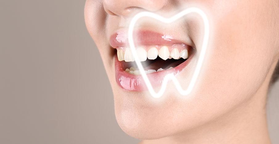 3-D print kan underlätta för tandimplantat